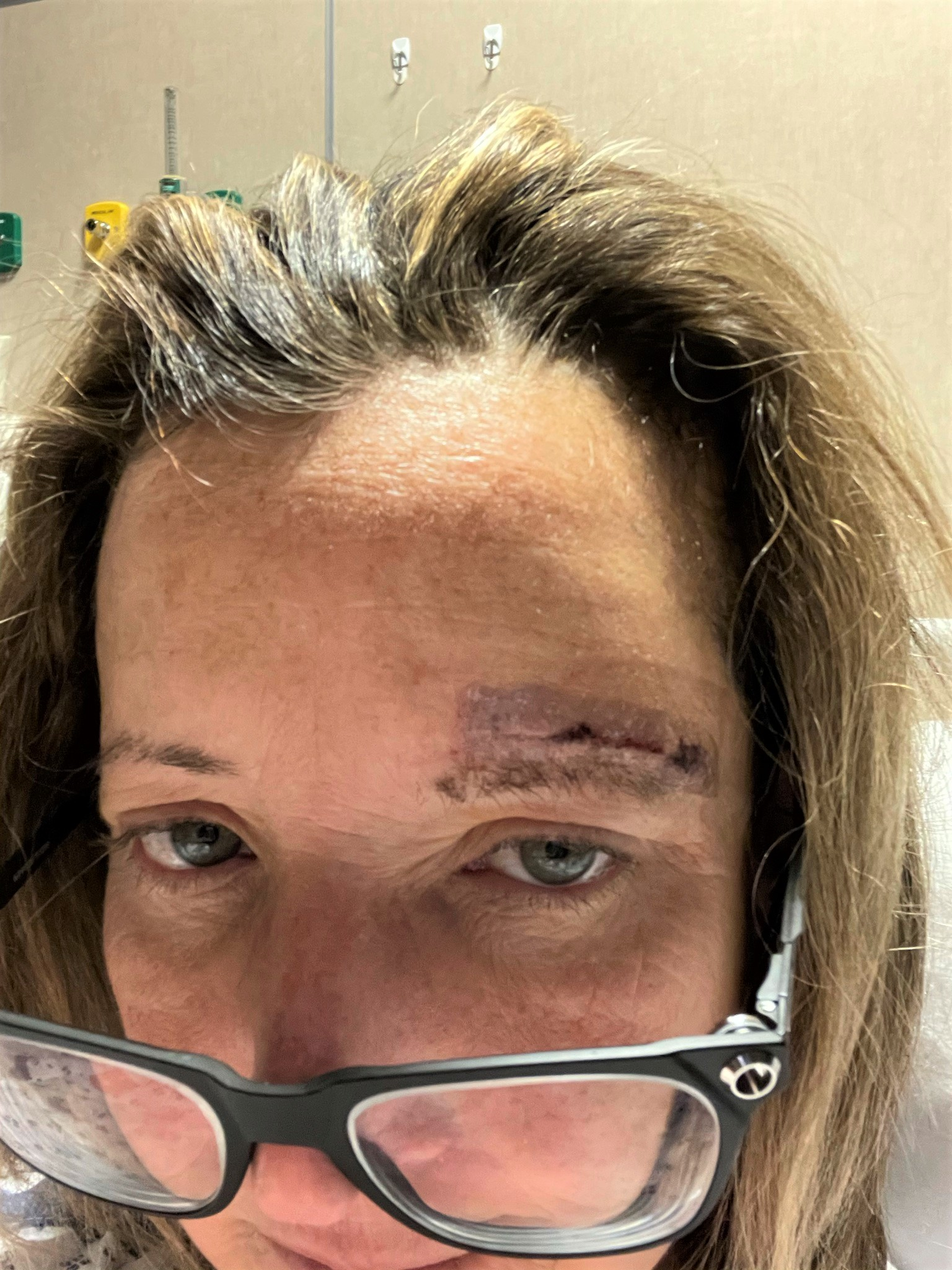 Woman in hospital post craniotomy